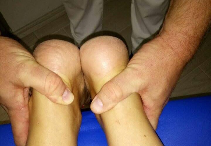 Nakon tretmana i nameštanja pršljenova - Ist Manual Radenković