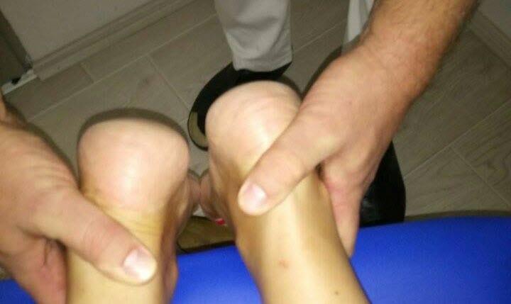 Skraćena noga kod pacijenta pre tretmana - Ist Manual Radenković